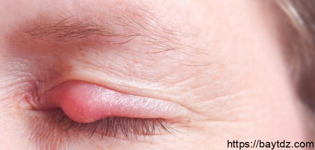 التهاب الجفن