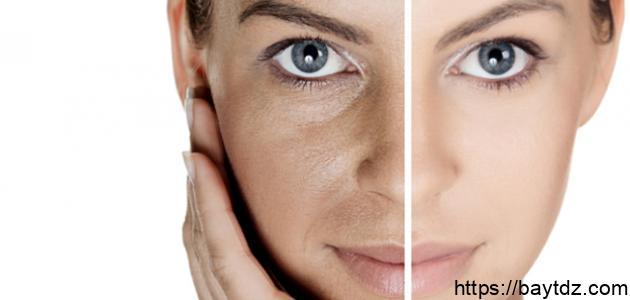 طريقة علاج كلف الوجه