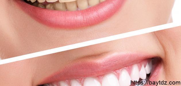 كيف يمكننا تبييض الأسنان
