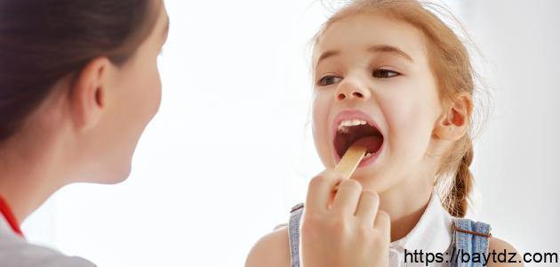 ما علاج التهاب اللوز عند الأطفال