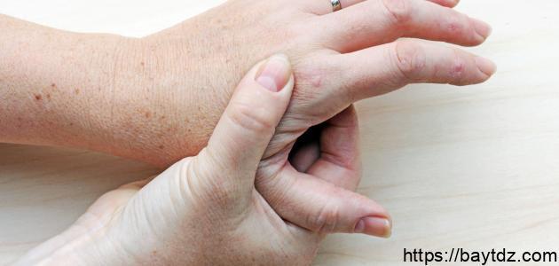ما هي أعراض النقرس