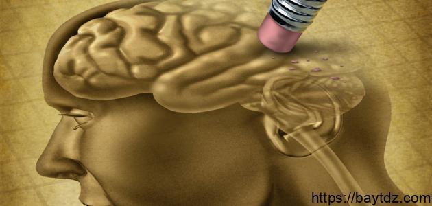 ما هي أعراض ضمور الدماغ