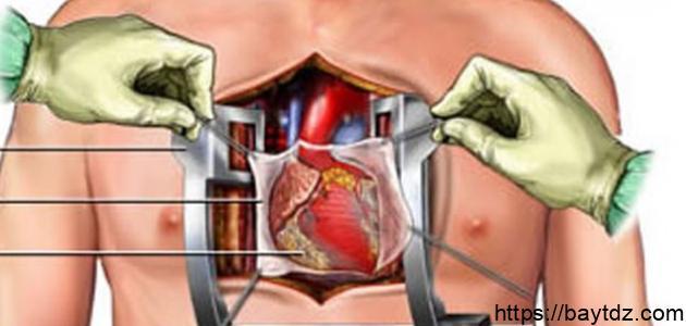ما هي عملية القلب المفتوح