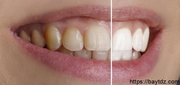 وصفات طبيعية لتبييض الأسنان منزلياً
