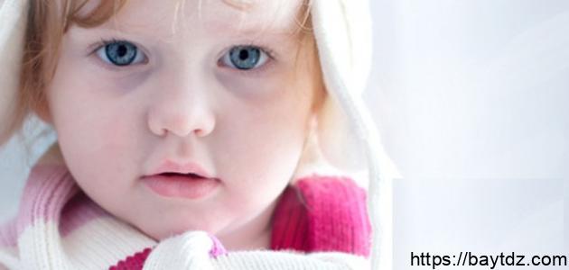 أسباب السواد تحت العين عند الأطفال