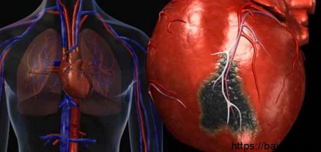 أسباب جلطة القلب