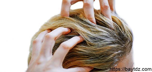 أسباب حكة الشعر
