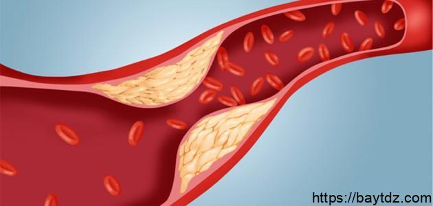 أعراض ارتفاع نسبة الكولسترول في الدم