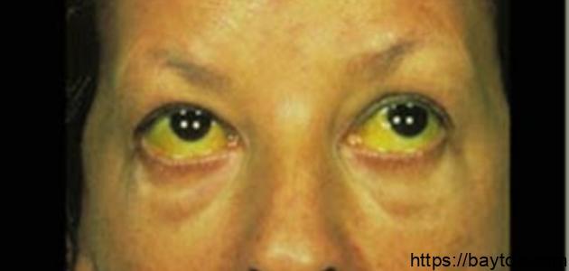 أعراض الإصابة بفيروس سي