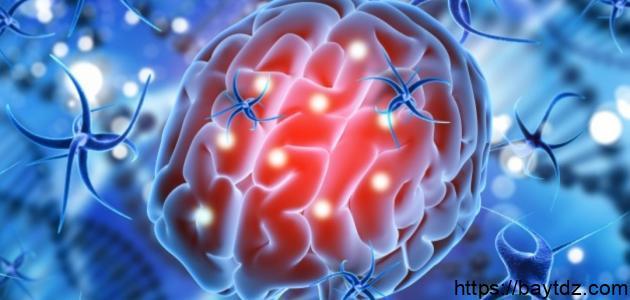 أعراض السرطان في الدماغ