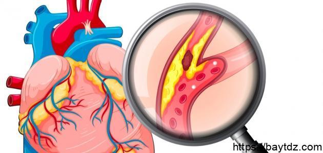 أعراض الكولسترول