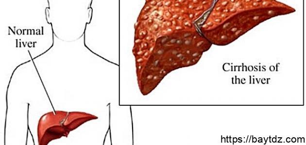 أعراض مرض فيروس C
