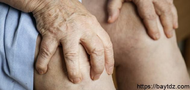 أفضل طريقة لعلاج خشونة الركبة