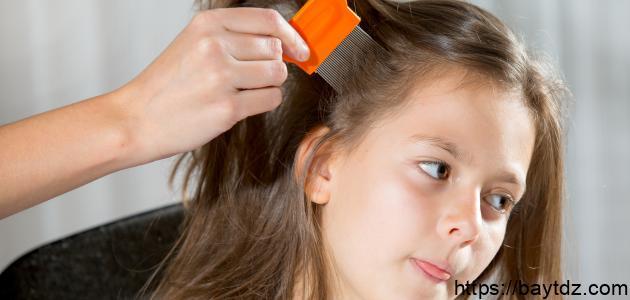 أفضل طريقة للتخلص من قمل الشعر