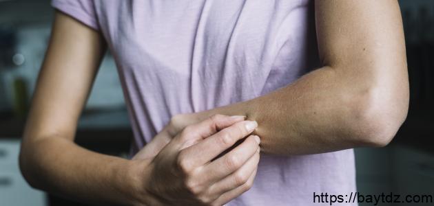 أمراض جلدية فطريات