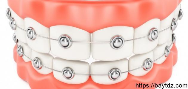 أهمية الأسنان وكيفية المحافظة عليها