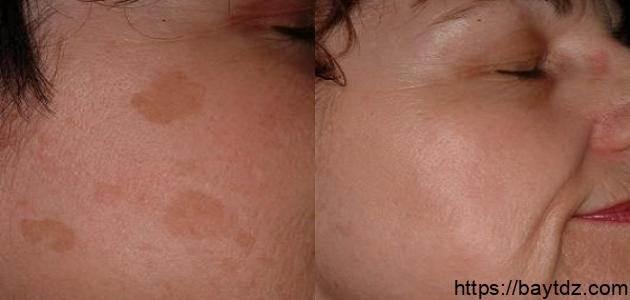 إزالة البقع البنية من الوجه