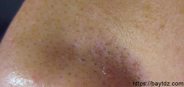 إزالة البقع السوداء في الوجه
