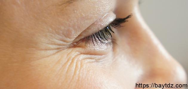 إزالة التجاعيد تحت العين طبيعياً