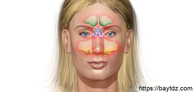 التهاب جيوب أنفية