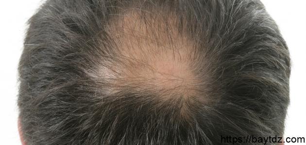 الصلع وزراعة الشعر