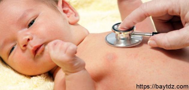 العيوب الخلقية في القلب للأطفال