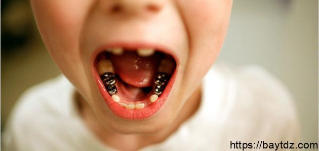 تآكل الأسنان – فيديو
