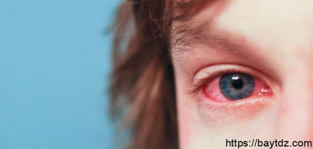 تأثير ارتفاع الضغط على العين