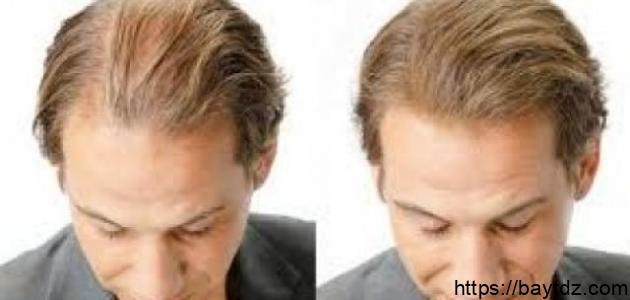 حلول لعلاج تساقط الشعر
