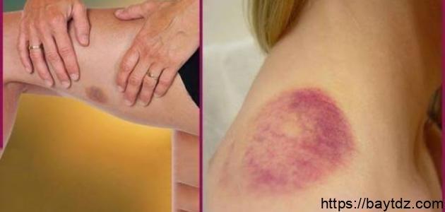 سبب ظهور البقع الزرقاء في الجسم