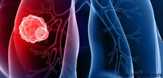 سرطان الرئة ،أعراضه و أسبابه