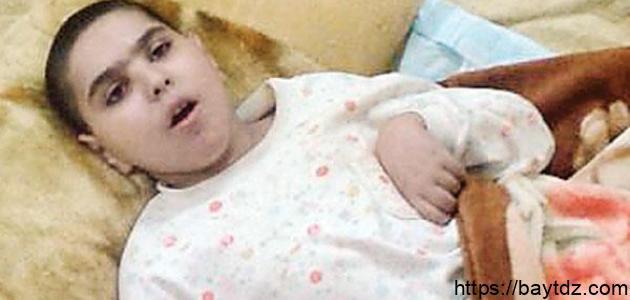 ضمور المخيخ عند الأطفال