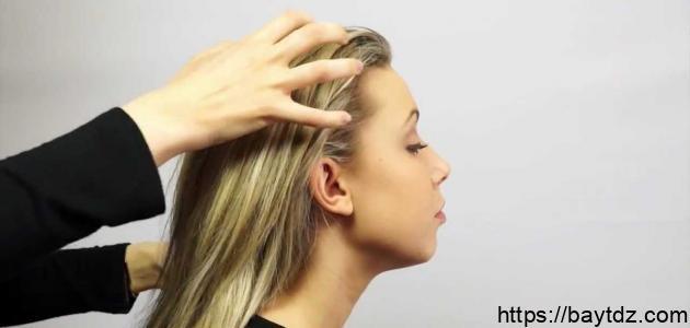 طريقة التخلص من القشرة في الشعر