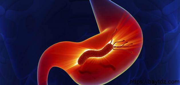 طريقة علاج جرثومة المعدة