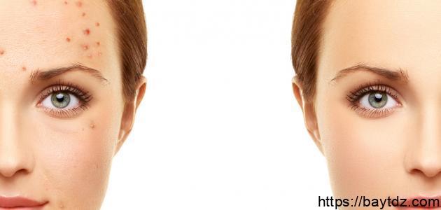طريقة علاج حبوب الوجه