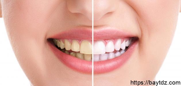 طريقة لجعل أسنانك بيضاء دائماً كالثلج