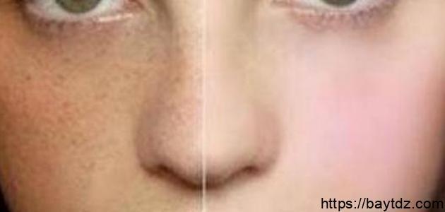 طريقةإزالة الكلف من الوجه