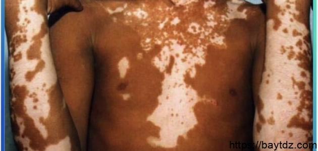 ظهور البقع البيضاء على الجلد