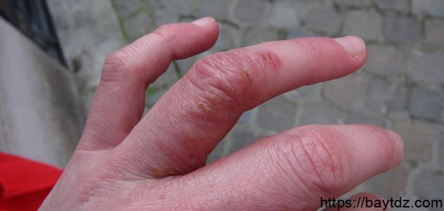 ظهور بقع حمراء تحت الجلد في اليد