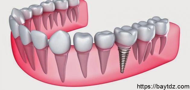 عدد الأسنان السفلية