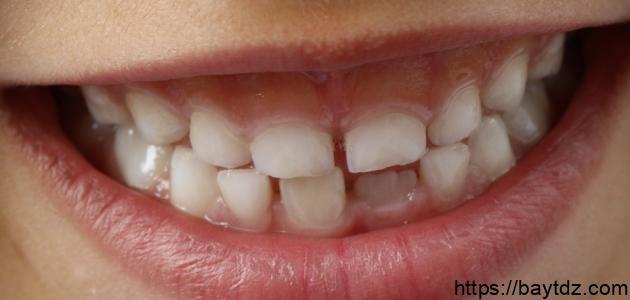 عدد الأسنان اللبنية والدائمة