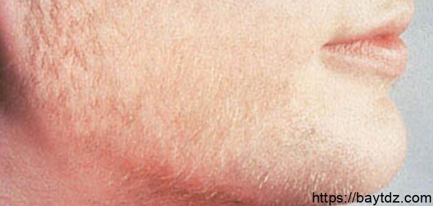 علاج ارتفاع هرمون الذكورة عند النساء