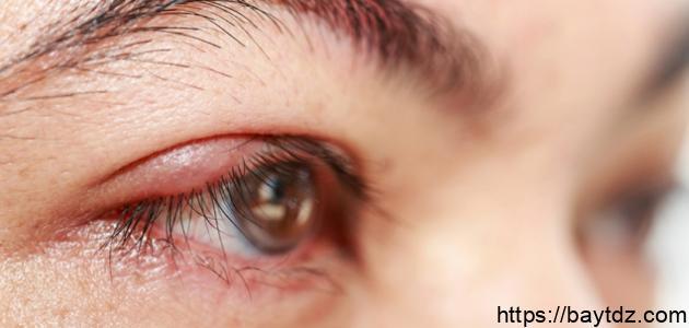 علاج التهاب حول العين