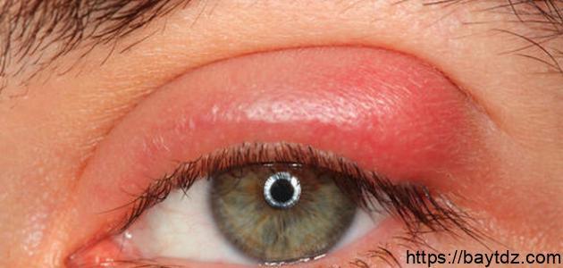 علاج انتفاخ جفن العين العلوي