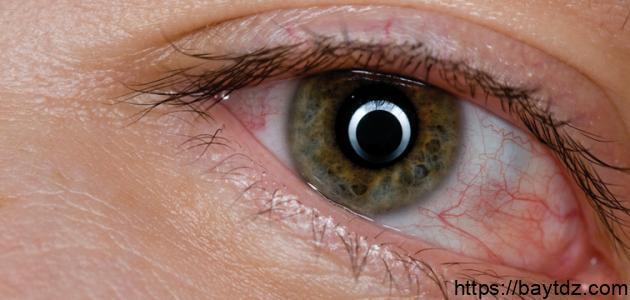 علاج انتفاخ جفن العين – فيديو