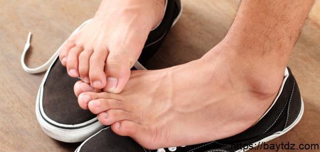 علاج فطريات ما بين أصابع القدم