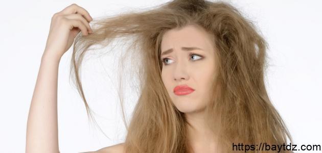 علاج قمل الشعر