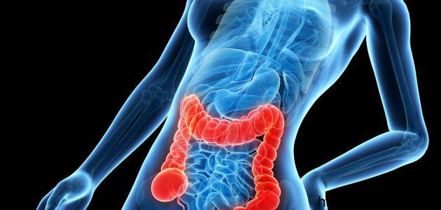 علامات مرض سرطان القولون