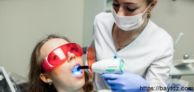 فوائد وأضرار تبييض الأسنان بالليزر