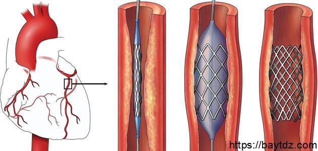 كيف تتم عملية قسطرة القلب